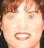 Laser Rejuvenation Dr Rey La Laser And Skin Center