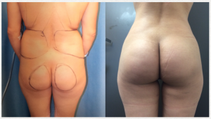 Butt Augmentation Before and After Photo
