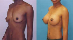 Breast Augmentation Before and After Photos - Dr. Robert Rey