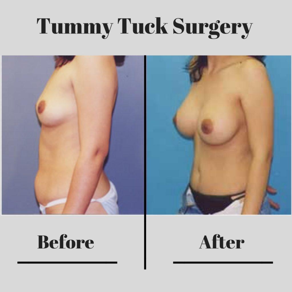 tummy_tuck6-tummy_tuck6-2-blog-ba-img