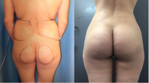 Before and After Butt Augmentation