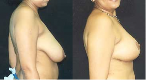 before-and-after-breast-reduction