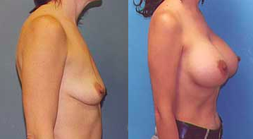 breast_lift1breast_lift2-img-blog
