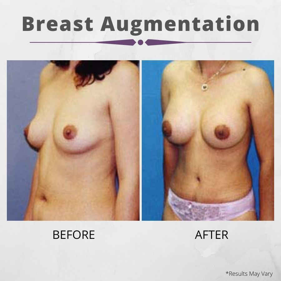 While recovering from breast surgery can take weeks, breast augmentation helps women get visibly fuller breasts, as seen in this before and after set.