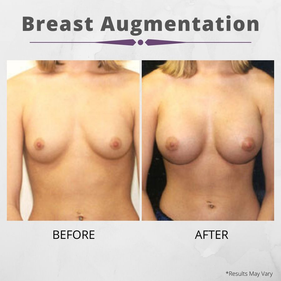 Preparing before your breast augmentation surgery can facilitate healing for beautiful, natural-looking results, like the before and after image set above.