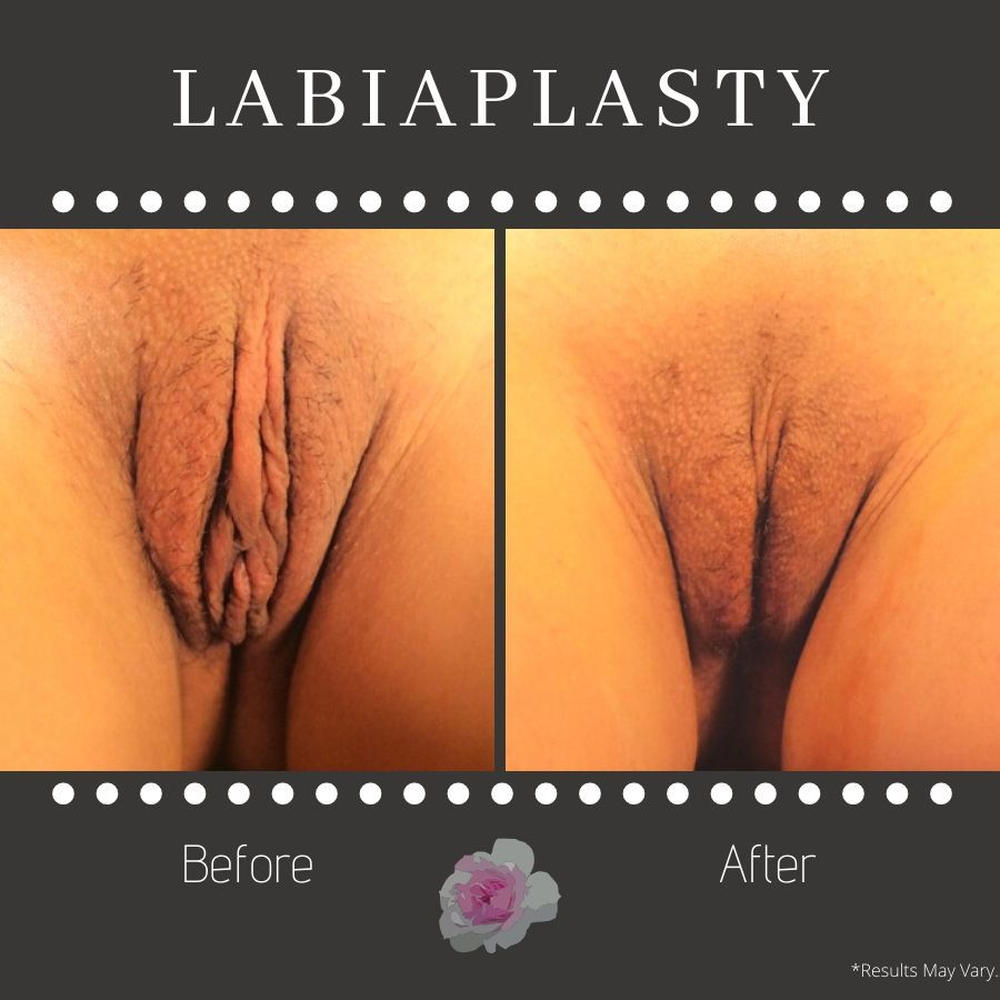 before-and-after-labiaplasty-image1-11-image2-1