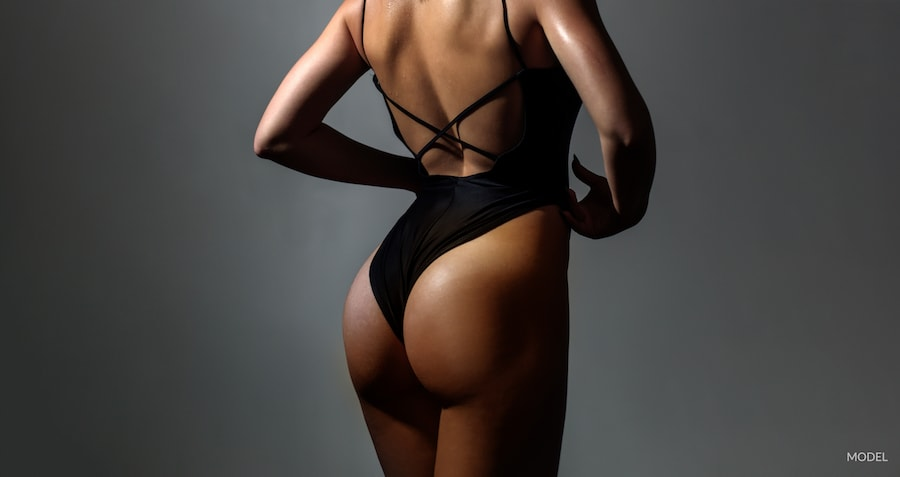Woman with beautiful curves after using a fat transfer for butt augmentation.